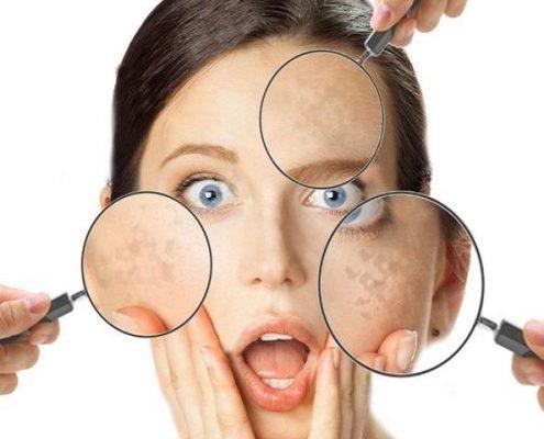 La pelle asfittica