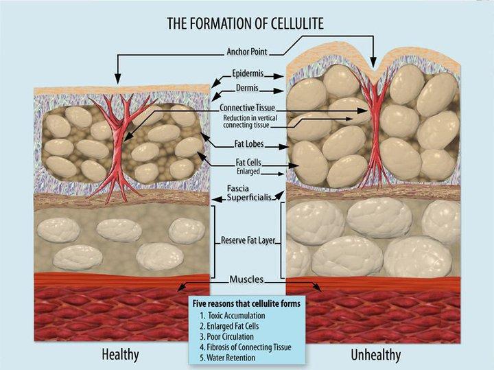 La cellulite – appunti da tenere sotto mano durante un'anamnesi corpo