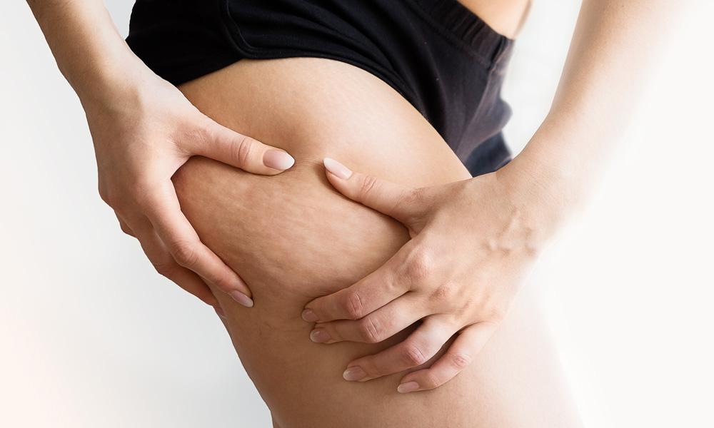 Cellulite: Quali i rimedi efficaci?